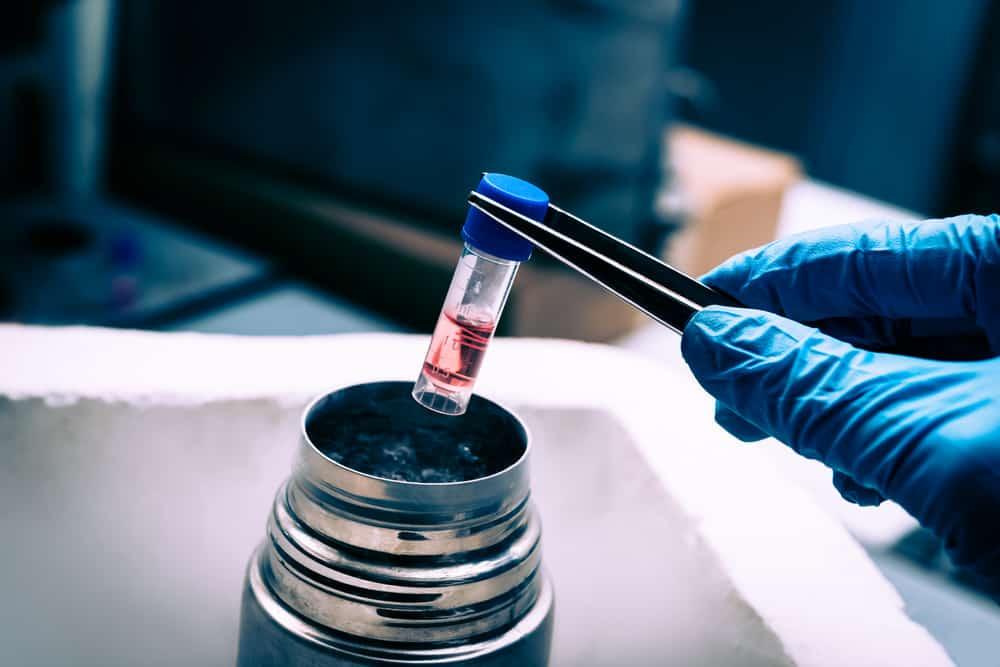 What are Mesenchymal Stem Cells (MSC)?