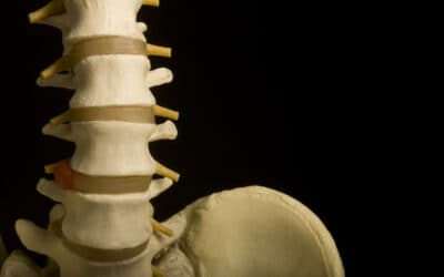 Procedures to Treat Facet Joint Pain